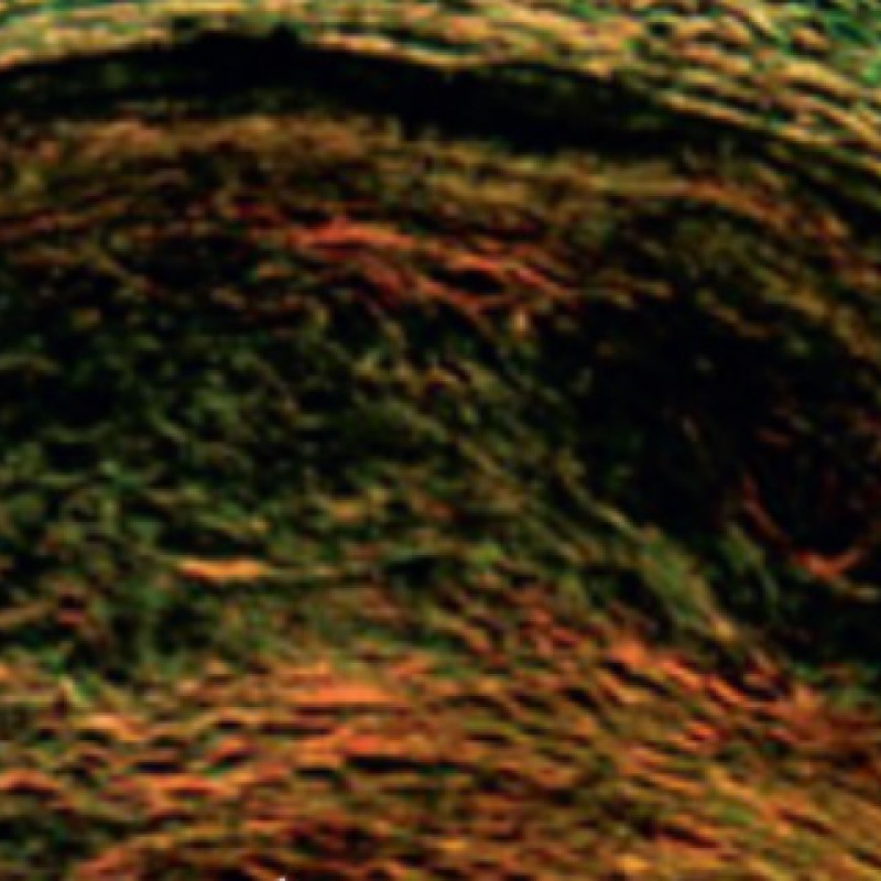 Thumbnail for Coronary plaque microstructure modifies polarization